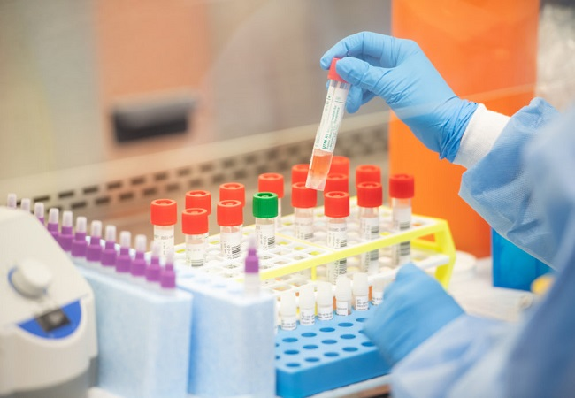 ICMR tells states to not use COVID-19 rapid testing kits for two days