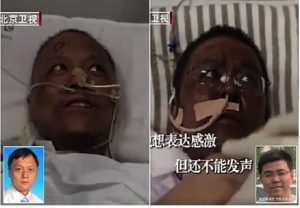 Infected Chinese doctor's skin turns dark after undergoing treatment for COVID-19