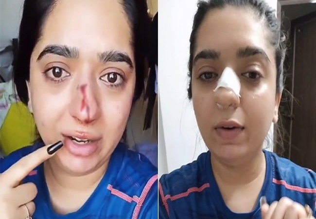 Zomato - are we really safe using ur services?: Bengaluru woman alleges delivery man broke her nasal bone