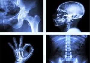 Steroid-infused bone death is the new post-COVID complication